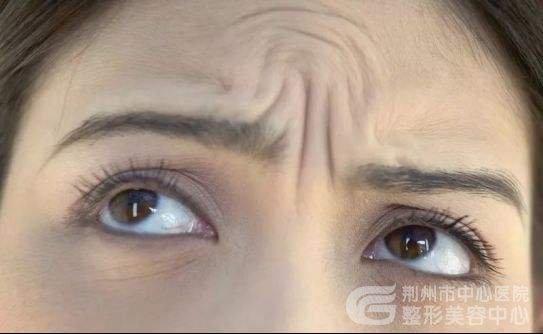 祛除眉间纹到底应该注射肉毒素还是注射玻尿酸