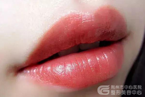 玻尿酸丰了唇之后接吻是什么感觉