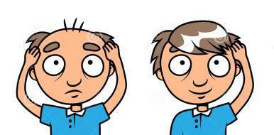 荆州植发要多少钱?自体毛发种植的特点有哪些呢