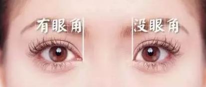 开眼角和双眼皮一起做效果怎么样