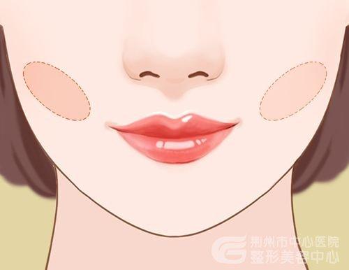 去颊脂垫手术怎么样?去颊脂垫有什么副作用吗