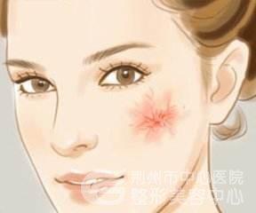 激光修复皮肤红血丝后要如何护理