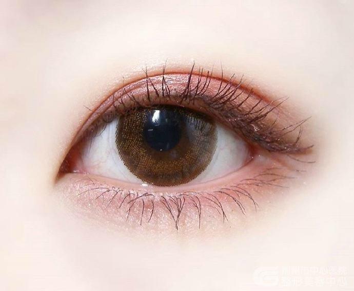 单眼皮近视眼做双眼皮手术对眼睛有伤害吗
