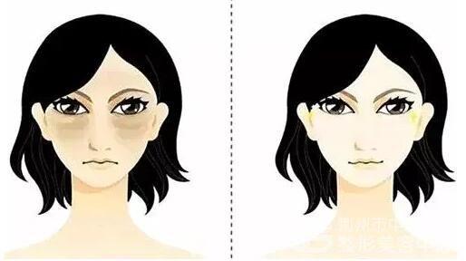 荆州做祛眼袋手术的效果可以保持多长时间